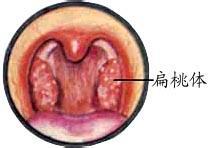 扁桃体肥大的危害有哪些